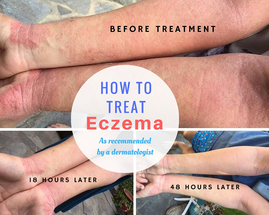 Natural Eczema Baby Products